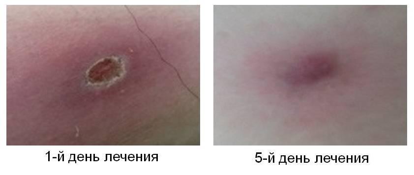 После вскрытия фурункула кожа